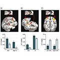 Impaired functional connectivity within and between frontostriatal circuits and its association with compulsive drug use and trait impulsivity in cocaine addiction.