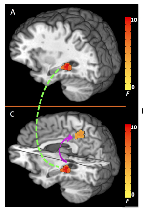 Basal Hippocampal Activity and Its Functional Connectivity Predicts Cocaine Relapse.