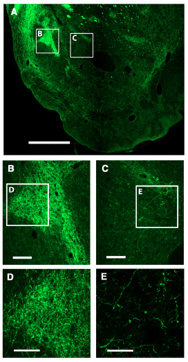 Local Control of Extracellular Dopamine Levels in the Medial Nucleus Accumbens by a Glutamatergic Projection from the Infralimbic Cortex.