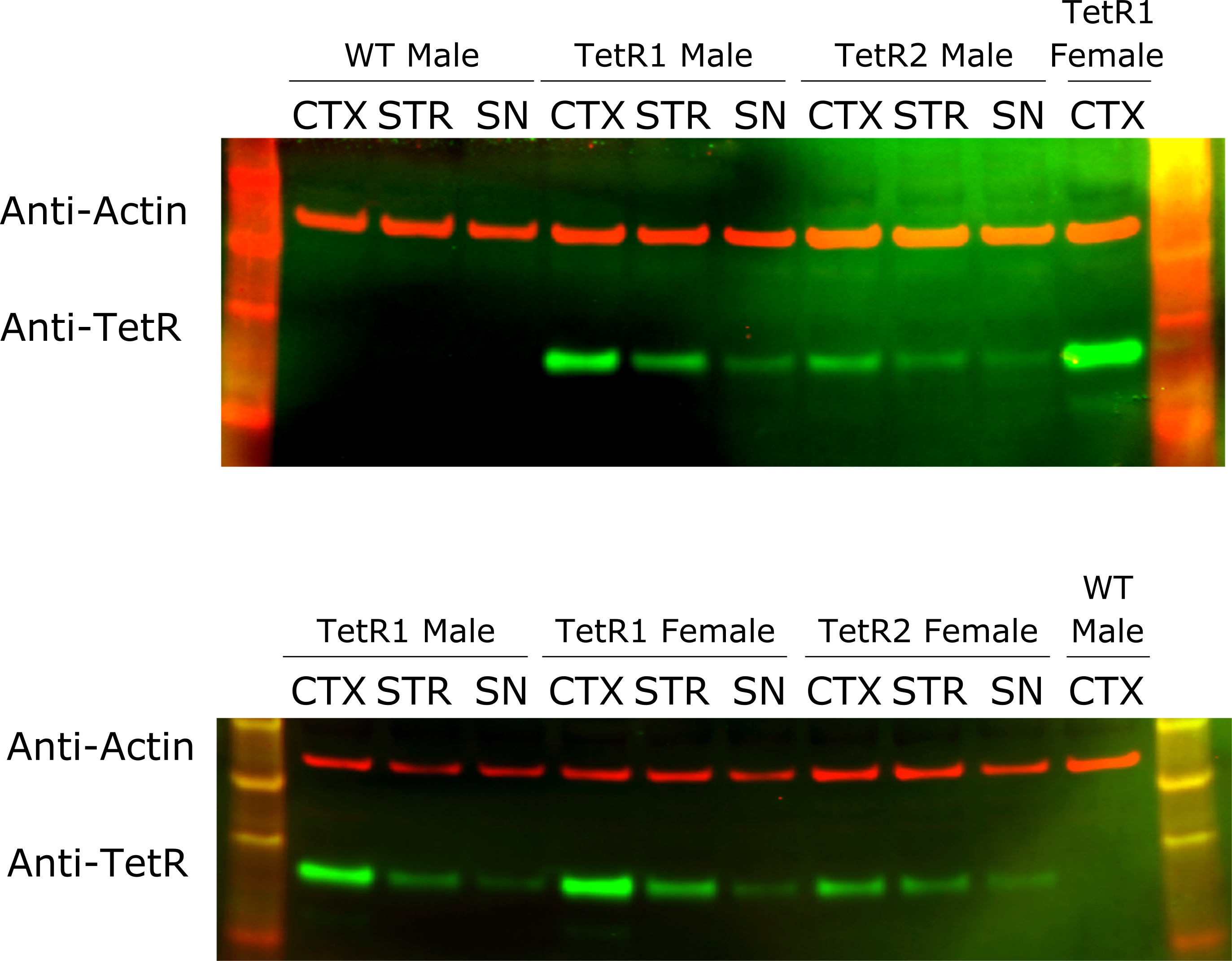 Figure 2. Detection of TetR transgene expression in the rat brain.